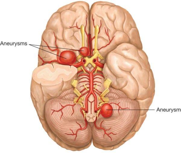 Зображення головного мозку