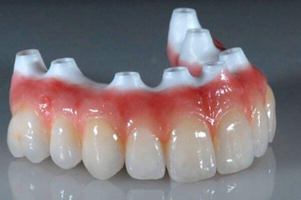 Цирконієві коронки на передні зуби: відгуки, вартість, опис