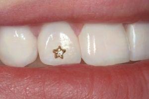 Гламурні зуби - небезпечно це?