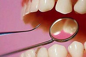 Японські стоматологи б`ють на сполох
