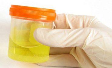Кишкова паличка в сечі при вагітності