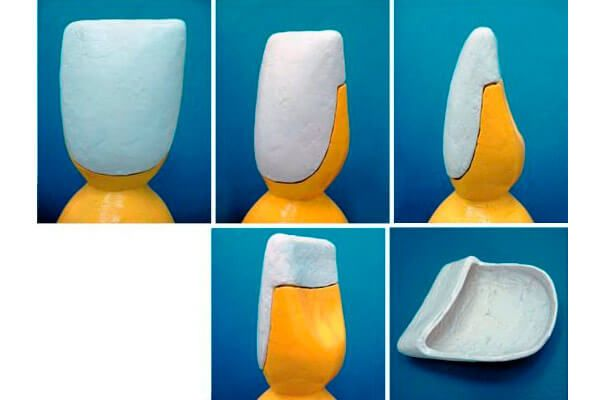 Як виглядає композитний вінір: фото зубів до і після