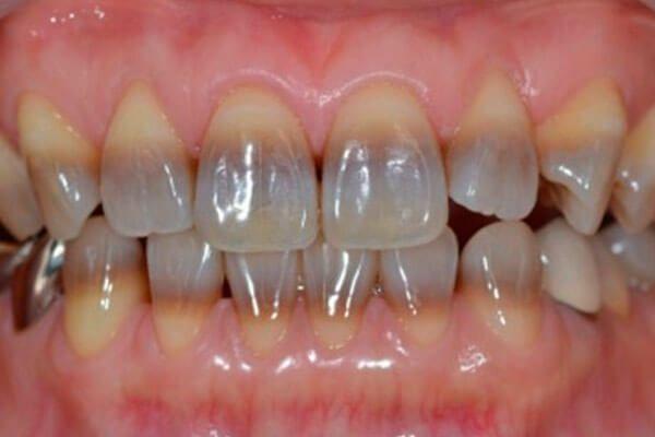 Як виглядають тетрациклінові зуби і чим відновити емаль
