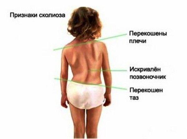 ознаки сколіозу