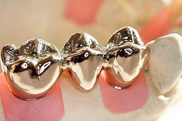 Які види зубних мостів існують