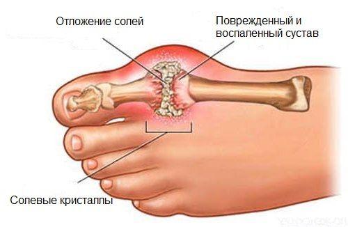 Лікування відкладень солей в суглобах дієтою і народними засобами