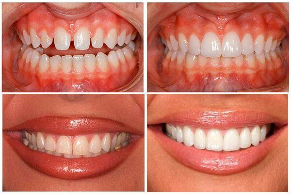 Люмініри: ціна за 1 зуб і супутні процедури