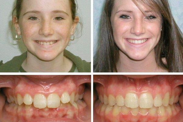 Неправильний прикус: фото зубів і форми обличчя