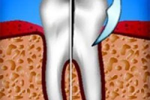 Нетравматичность видалення зубів тепер доступно!