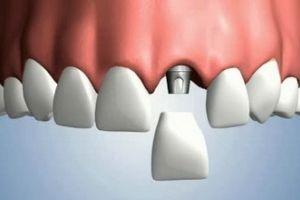 Новинка в імплантації зубів