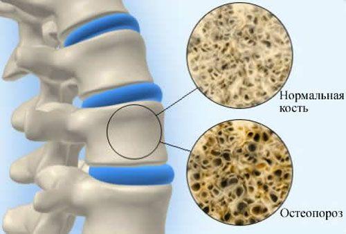 Остеопороз: лікування народними засобами