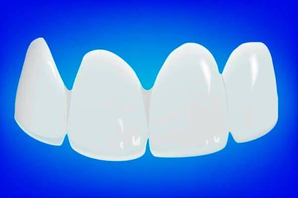 Пластмасові коронки на передні зуби: відгуки і ціни