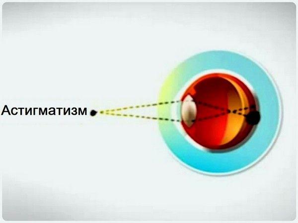 Причини і лікування дефекту очі при астигматизмі у дитини