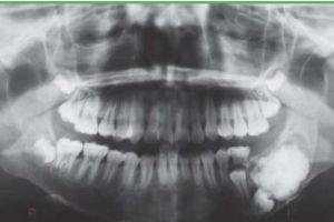 Проведена унікальна операція з видалення 232 зубів у однієї людини