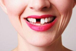 Порятунок зубів: порада від стоматологів