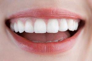 Стоматологи розповіли, які продукти допоможуть відбілити зуби