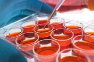 Стоматологи впроваджують пломби зі стовбурових клітин