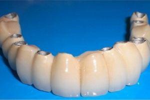 Стоматологія вилати пацієнту понад 60 тисяч