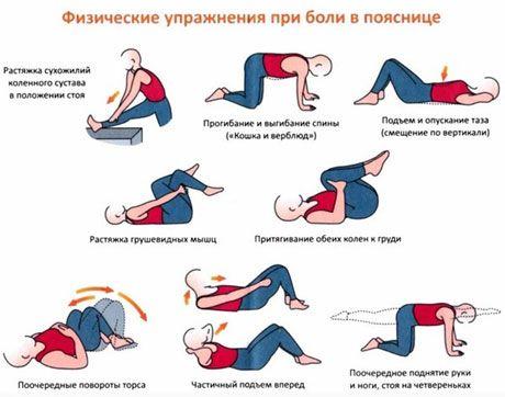 Вправи при радикуліті: ефективна гімнастика