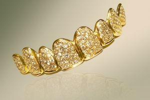 У дубаї виготовили інкрустований діамантами золотий протез