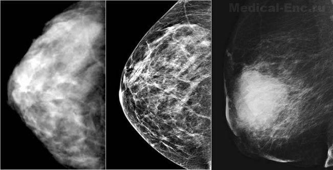 Розшифровка результатів мамографії