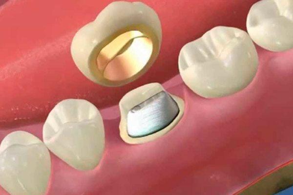 Вкладка в зуб під коронку: фото, вартість, опис