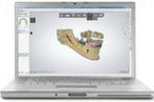 Впровадження в стоматологію 3d-друку від stratasys