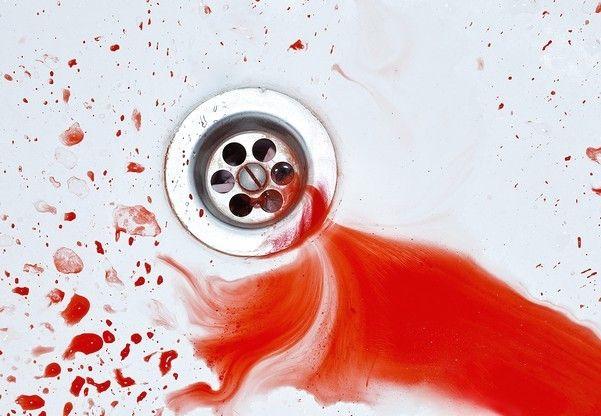 Кровотеча у ванній