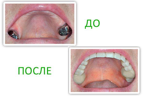 Зубний протез сендвіч: позитивні і негативні сторони